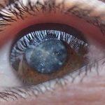 Consumul ridicat de vitamine și carotenoide reduce riscul cataractei induse de vârstă