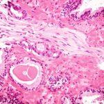 Suplimentele cu vitamina D pot provoca încetinirea sau chiar regresia cancerului de prostată