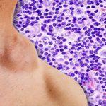 Deficitul de vitamina D, asociat cu rezultate slabe în cazul pacienţilor cu limfom Hodgkin
