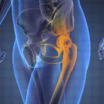Cancerul osos răspunde la sinergia microelementelor nutritive