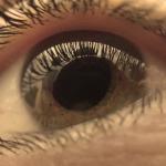 Vitamina B3, promiţătoare pentru pacienţii cu glaucom