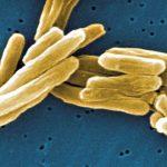 Beneficiile clinice ale microelementelor nutritive în tuberculoză