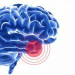 Microelementele nutritive împotriva tumorilor cerebrale